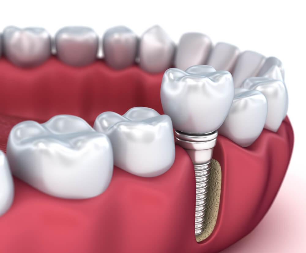 Implant dentaire : quel est le prix à payer ?